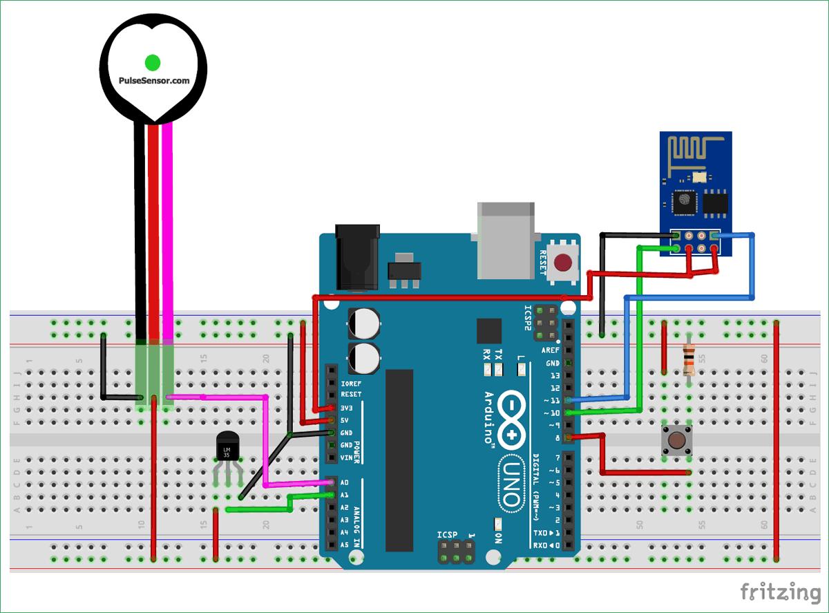 Схема системы удаленного мониторинга здоровья пациента на основе платы Arduino