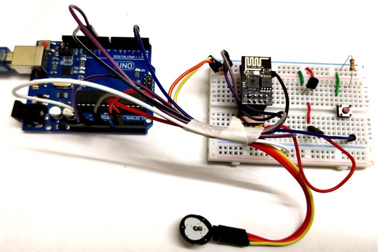 Внешний вид системы удаленного мониторинга здоровья пациента на Arduino