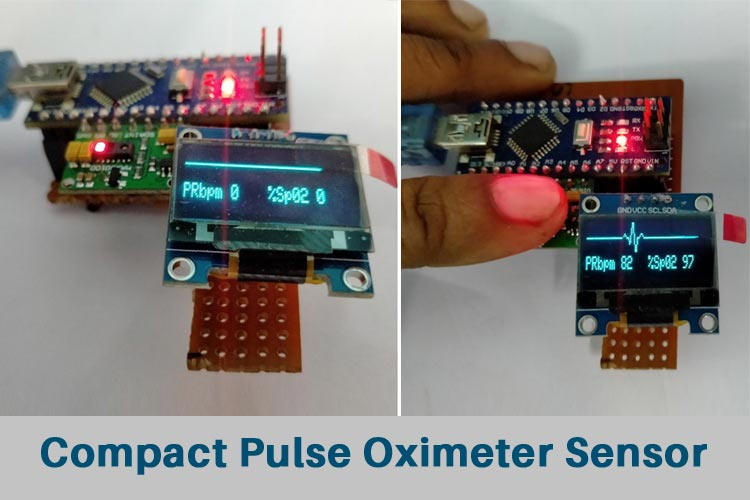 Внешний вид пульсоксиметра на основе платы Arduino и датчике MAX30100